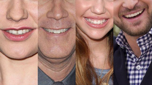 Can you guess the Celebrity Smile?
