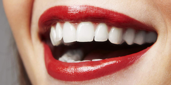 Porcelain Veneers | How it all began