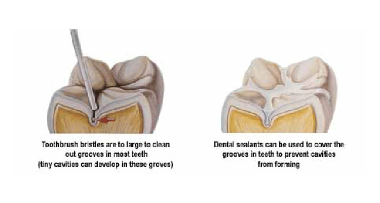 What is Fissure Sealants and Why your Kids should get it