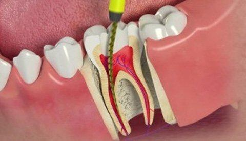 No need to fear Root Canal Treatments