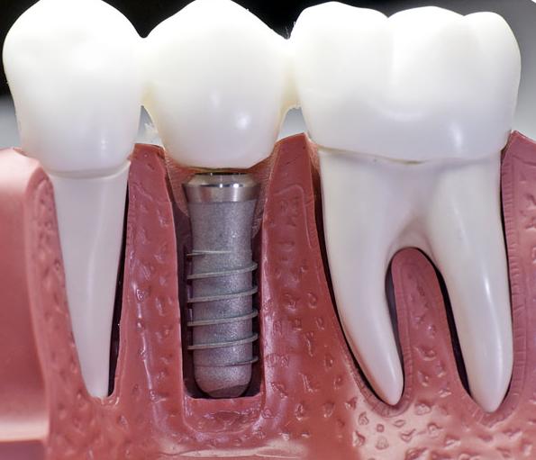 Want to know more about Dental Implants?