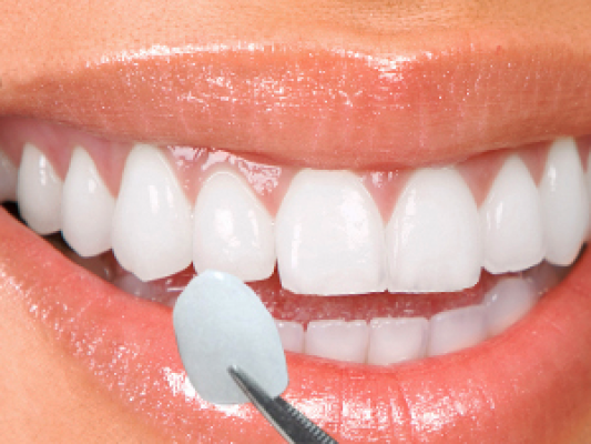 How Veneers can help your Smile