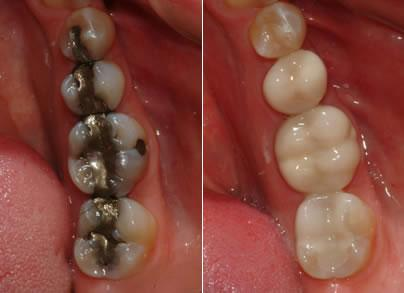We go Metal-Free at Corne Smith Dentistry