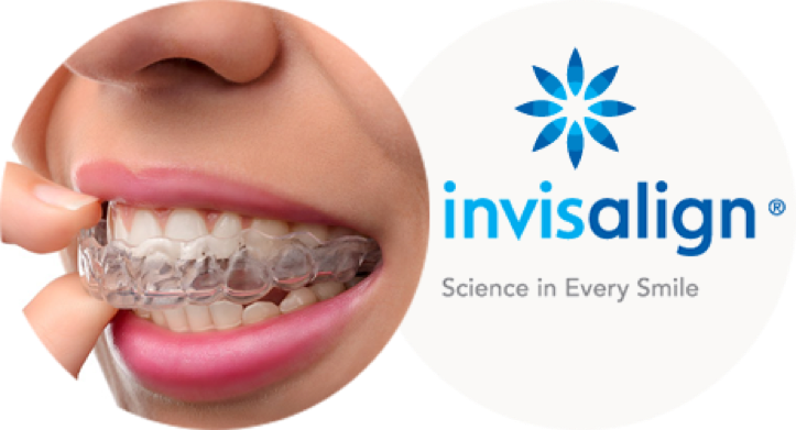 INVISALIGN® – The clear alternative to braces