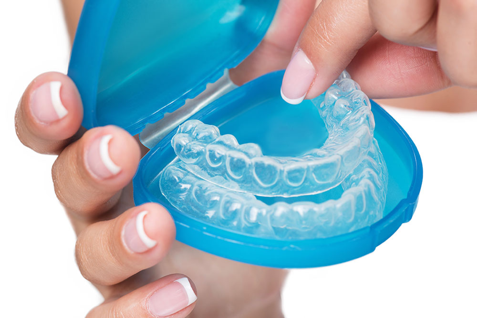 WHAT TO EXPECT WHEN WEARING INVISALIGN FOR THE FIRSTS TIME?